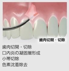 歯肉の切除