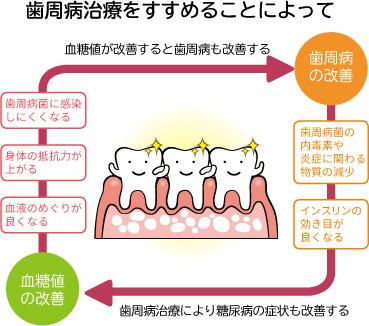 歯周病治療をすすめることによって